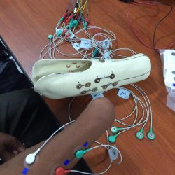 Part of prosthetic leg and many colored wires on a table connected to an amputated arm