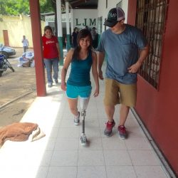 man walking with woman who has a prosthetic leg